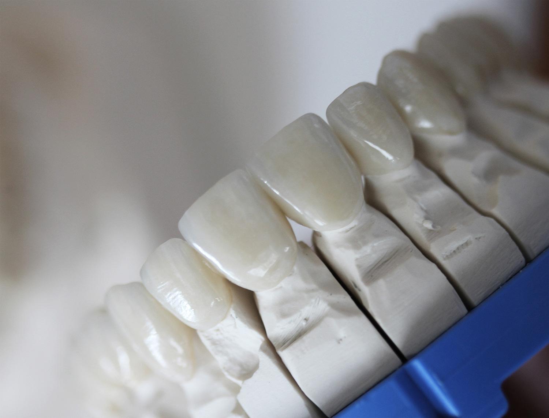 veneers aesthetic veneers spezialist schleswig-holstein keramik krone zahnarzt
